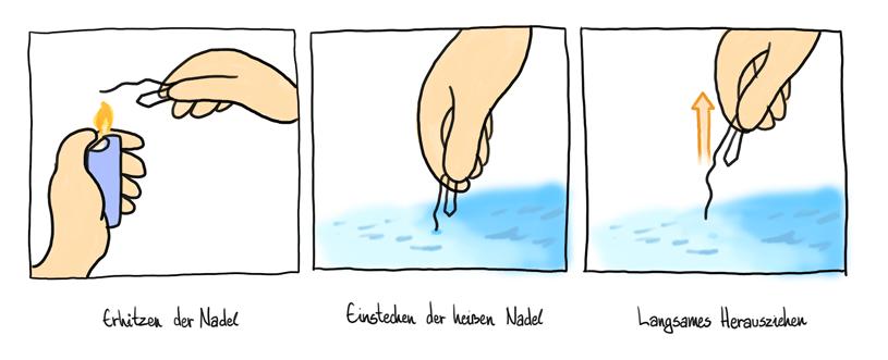 Nadeltest